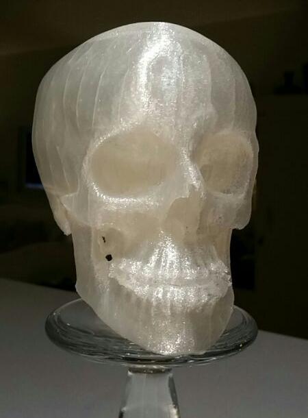 3D_Printed_Macrognathism